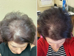 Cosmetice Farmasi pentru regenerarea părului